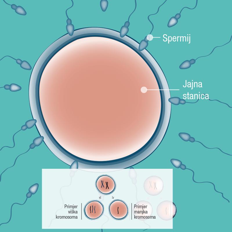 Ponekad može doći do pogreške zbog koje spermij ili jajna stanica imaju manjak ili višak kromosoma