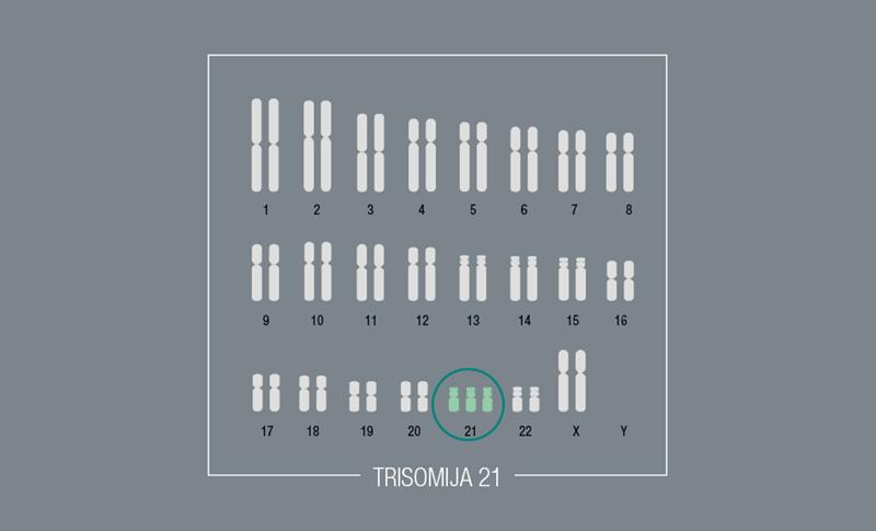 Kromosomski poremećaji – Trisomija 21