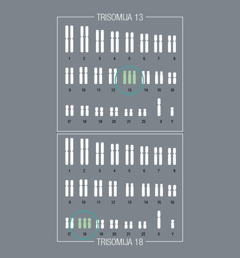 Kromosomski poremećaji – Trisomija 13 i 18