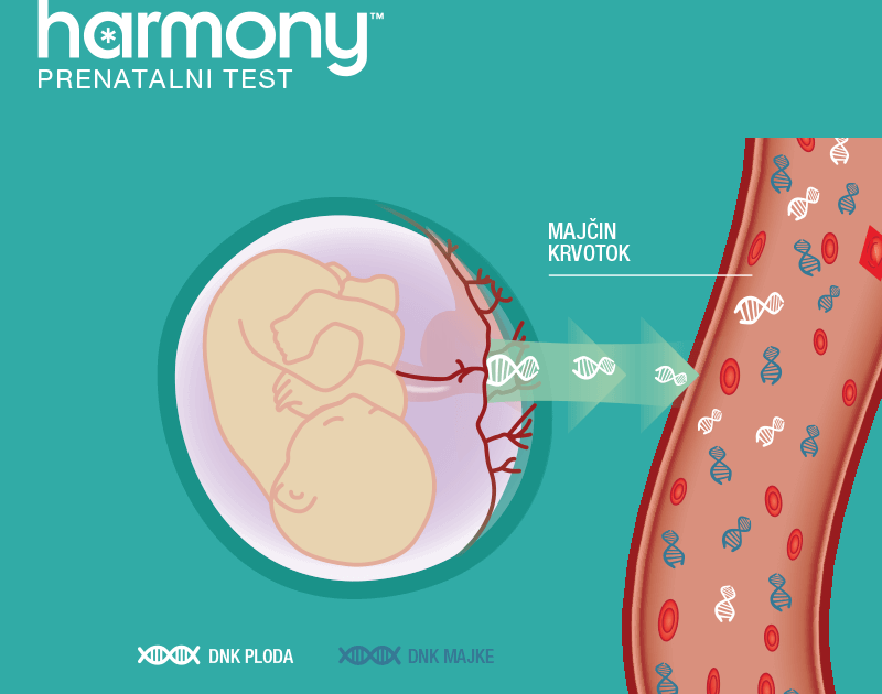 Probirnim krvnim testom Harmony otkrivaju se trisomija 21 (Downov sindrom), trisomija 18 i trisomija 13
