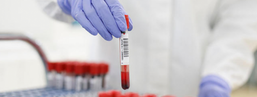 Laboratorijsko testiranje respiratorne bolesti COVID-19 uzrokovane korona  virusom SARS-CoV-2 - Žensko zdravlje